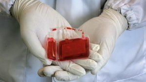Concentrat de celule stem